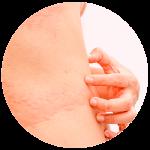 alergia-en la piel tratamiento