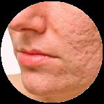 secuelas de acne tratamiento